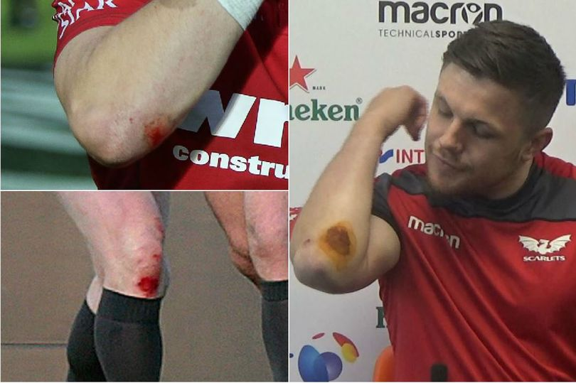Rugby Players Suffer 3G Burns